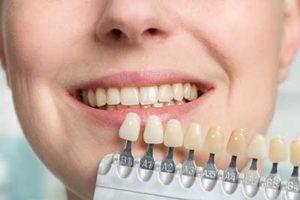 dental veneers tx, person holding up veneers to their real teeth