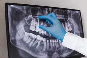 dentist reading Dental X-Rays