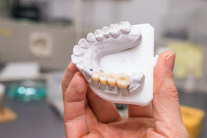 teeth mold showing dental crowns and bridges